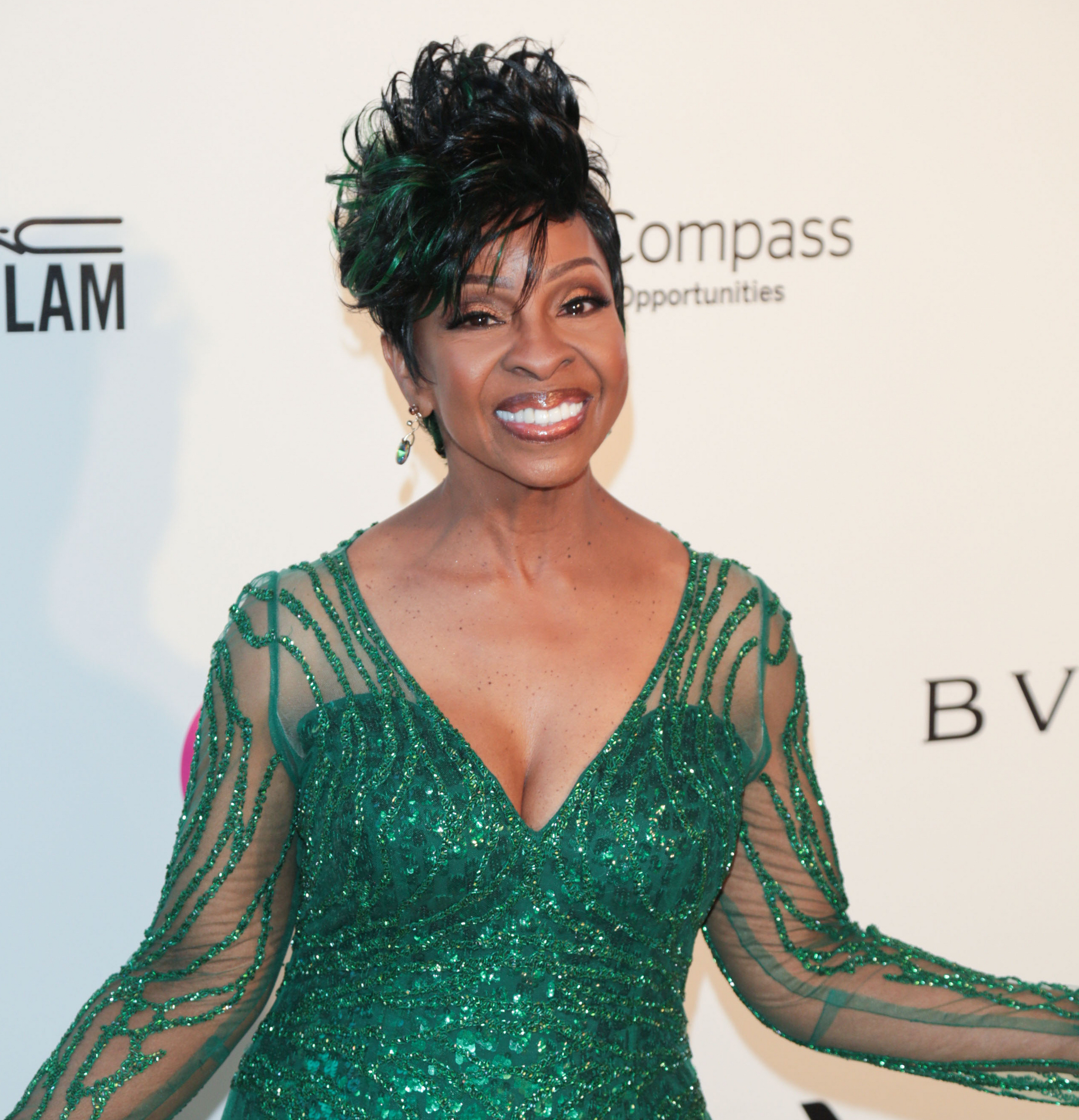Gladys Knight Provides The Receipts On Plastic Surgery Rumors